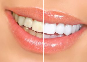 Why You Should Get Teeth Whitening Procedures